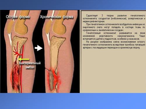 Костная болезнь симптомы